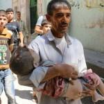 Liječnici iz Aleppa uputili pismo Obami