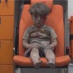 """Kirby: """"Ne možete skinuti očiju s fotografije i ne vidjeti da je to pravo lice onoga što se događa u Siriji"""""""