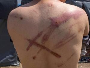 Ovaj muškarac iz Alžira tvrdi da ga je pretukla hrvatska policija.